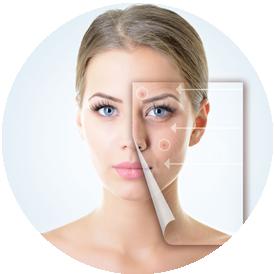 acne-huidverbetering